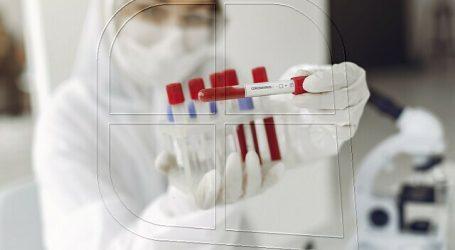 Coronavirus superó los 18 millones de personas contagiadas en todo el mundo